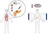IMDEA Nanociencia coordina NoCanTher, un proyecto europeo que comienza ahora la fase de ensayo clínico que prueba nanopartículas magnéticas para hipertermia contra el cáncer de páncreas